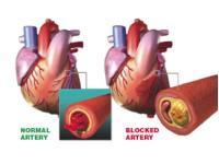 ANGINA is a symptom of coronary heart disease.